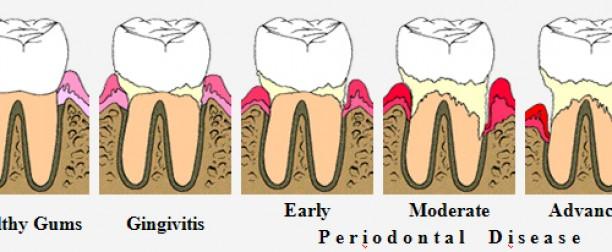Gum treatments